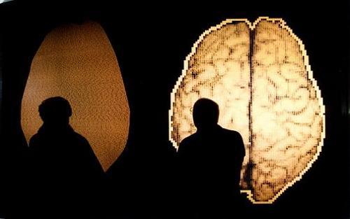 Foto de cerebros